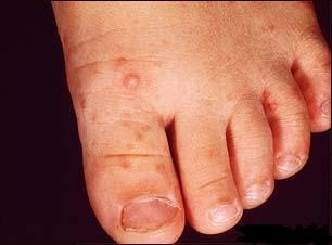 Malattie infettive malattia mano piede bocca paternit for Bocca mani piedi si puo fare il bagno